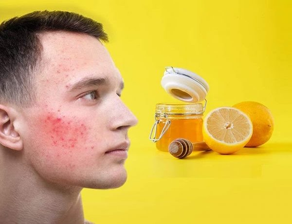 Acne on face: Amazing honey and lemon mixture to get rid of pimples from face